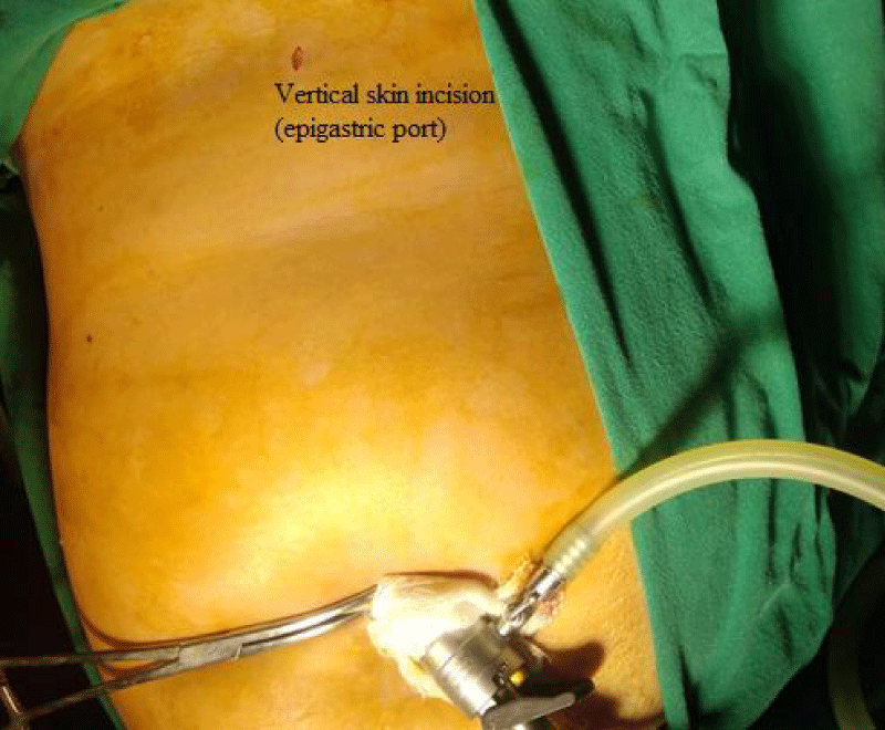 Laparoscopic Cholecystectomy: Challenges faced by beginners