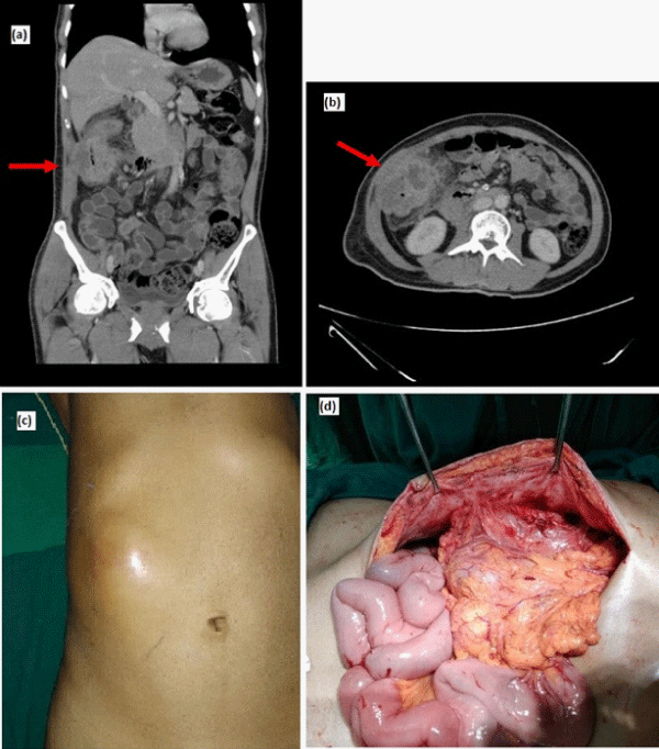 Anterior Abdominal Wall Abscess An Unusual Presentation Of Carcinoma Of The Colon