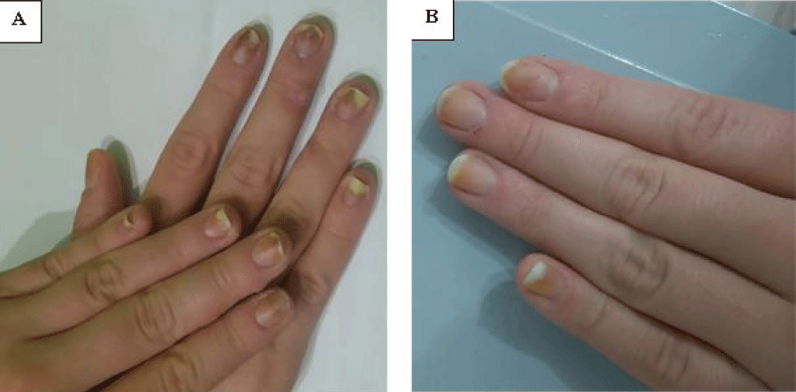 Secondary Onychomycosis Development after Cosmetic Procedure-Case Report