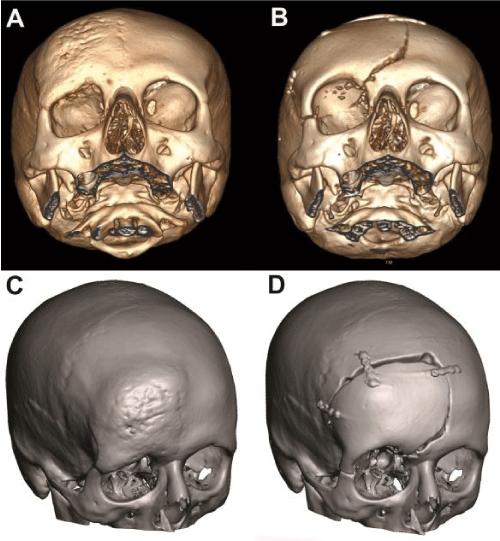 Cranioplasty with preoperatively customized Polymethyl-methacrylate