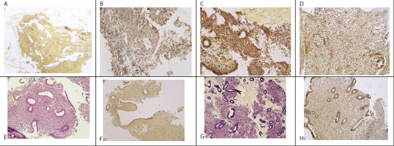 Application of autologous adipose-derived stem cells for